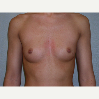 25-34 year old woman treated with Breast Augmentation before 3776151