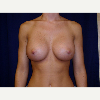 25-34 year old woman treated with Breast Augmentation after 3776151