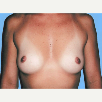 Breast Augmentation before 3731673