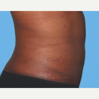 Tummy Tuck after 3813595