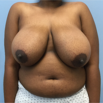 18-24 year old woman treated with Breast Reduction before 3050209