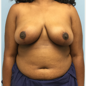 18-24 year old woman treated with Breast Reduction after 3050209
