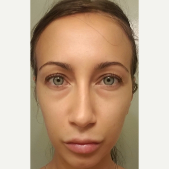 29 year old female, with under eye bags and dark circles, underwent lower blepharoplasty. before 3686663