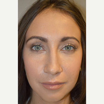 29 year old female, with under eye bags and dark circles, underwent lower blepharoplasty. after 3686663