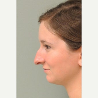 17 or under year old woman treated with Rhinoplasty before 2060002