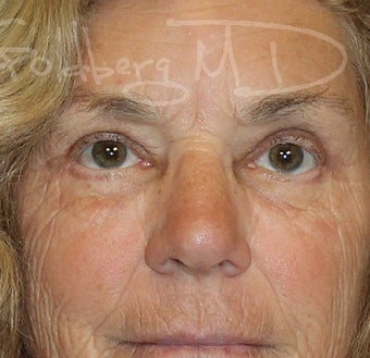 Pearl Fractional Laser after 3364209