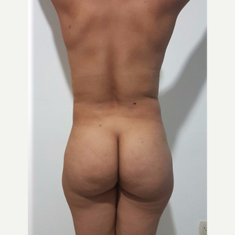35-44 year old woman treated with Brazilian Butt Lift before 3288138