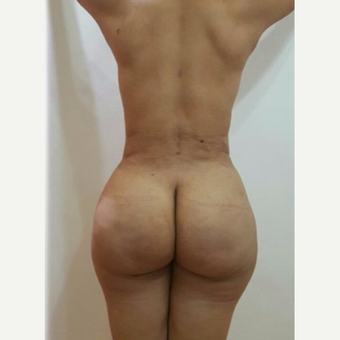35-44 year old woman treated with Brazilian Butt Lift after 3288138