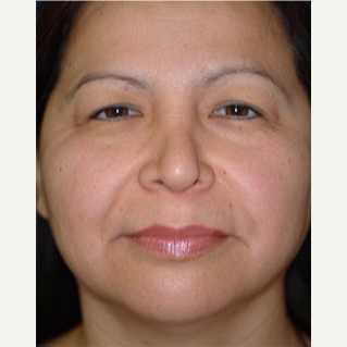 45-54 year old woman treated with Eyelid Surgery before 3578154