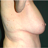 66 year old woman treated with Breast Lift with Implants after 3665861