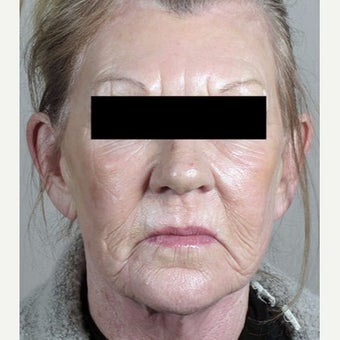 55-64 year old woman treated with Halo Laser after 1909014