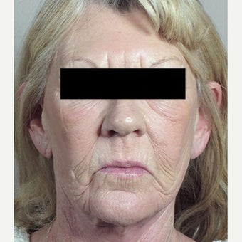 55-64 year old woman treated with Halo Laser before 1909014