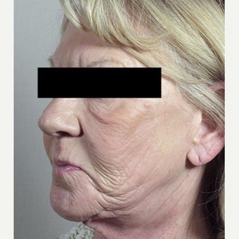 55-64 year old woman treated with Halo Laser 1909014