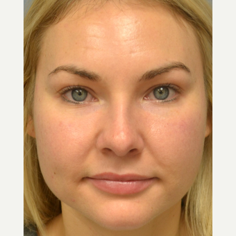 25-34 year old woman treated with Rhinoplasty after 3837667