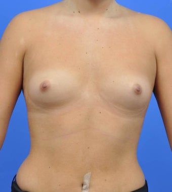 18-24 year old woman treated with Breast Augmentation before 3033882