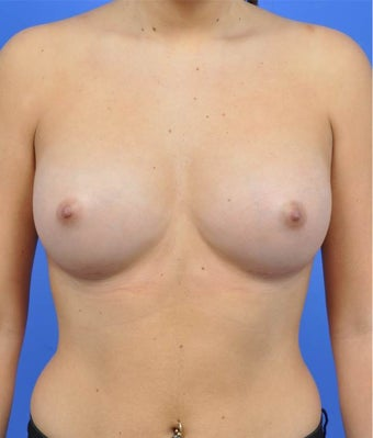 18-24 year old woman treated with Breast Augmentation after 3033882