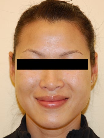 Restylane for Nasolabial Folds after 926686