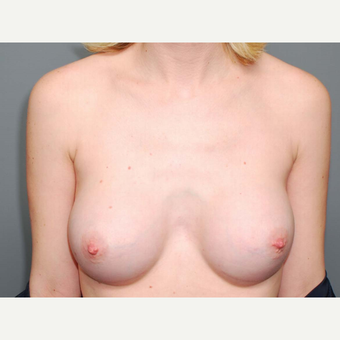 28 y/o Inframammary Sub Muscular Breast Augmentation after 3066136