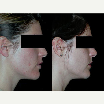 Acne Scars Treatment Before After Pictures Realself