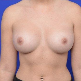 28 year old woman treated with Breast Augmentation after 3670086
