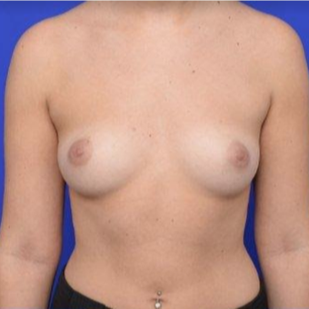 28 year old woman treated with Breast Augmentation before 3670086