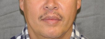 35-44 year old man treated with Lip Lift after 3175804