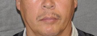 35-44 year old man treated with Lip Lift before 3175804