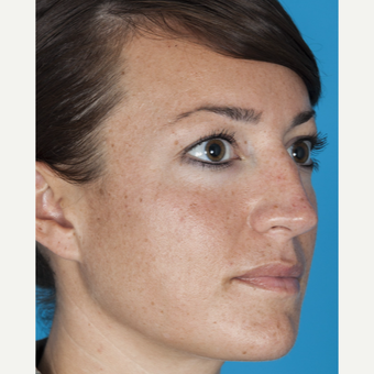 25-34 year old woman treated with Nose Surgery before 3050332