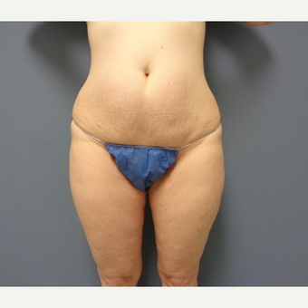 45-54 year old woman treated with Tummy Tuck before 3747223