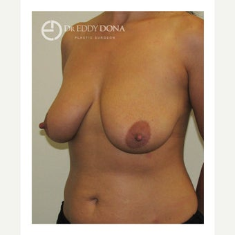 35-44 year old woman treated with Breast Lift with Implants 1617905