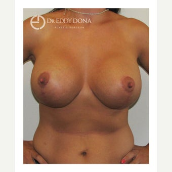 35-44 year old woman treated with Breast Lift with Implants after 1617905