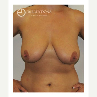 35-44 year old woman treated with Breast Lift with Implants before 1617905