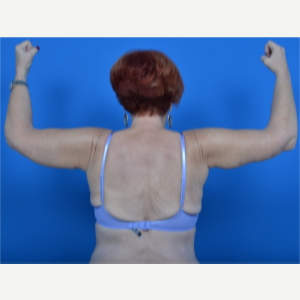 67 year old female - arm lift (brachioplasty) after 3327805