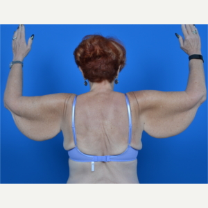 67 year old female - arm lift (brachioplasty) before 3327805
