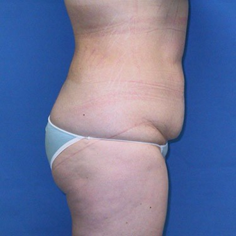 25-34 year old woman treated with Tummy Tuck before 3496769