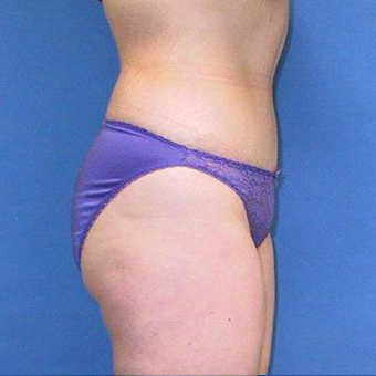 25-34 year old woman treated with Tummy Tuck after 3496769
