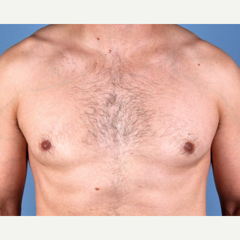 35-44 year old man treated with Male Breast Reduction after 3810159