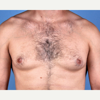35-44 year old man treated with Male Breast Reduction before 3810159