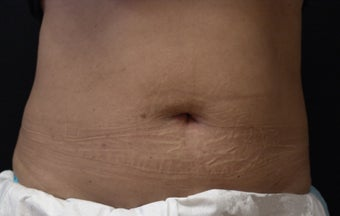 Coolsculpting Abdomen after 625387
