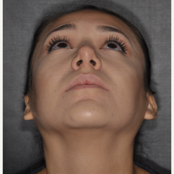 18-24 year old woman treated with Rhinoplasty 1 year post-op. after 3708692