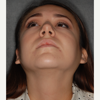 18-24 year old woman treated with Rhinoplasty 1 year post-op. before 3708692