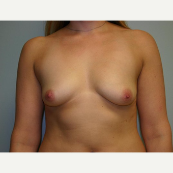 Breast Augmentation before 3560701
