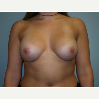 Breast Augmentation after 3560701