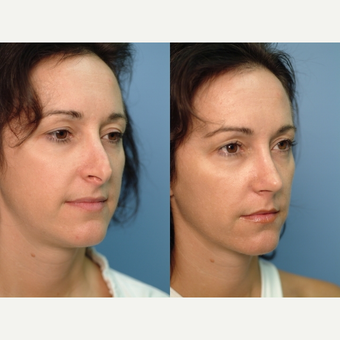 35-44 year old woman treated with Revision Rhinoplasty 2682497