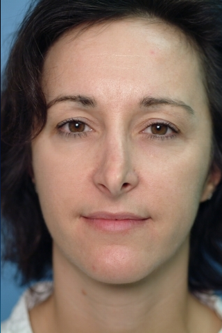 35-44 year old woman treated with Revision Rhinoplasty before 2682497