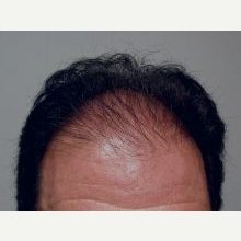 Hair Transplant before 3241416