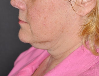 57 Year ol female treated with Ultherapy  before 1026760