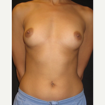25-34 year old woman treated with Breast Implants before 3104031