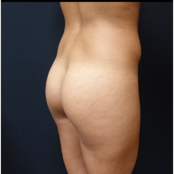 25-34 year old woman treated with 548cc Round Silicone Butt Implants for her Butt Augmentation before 3033291