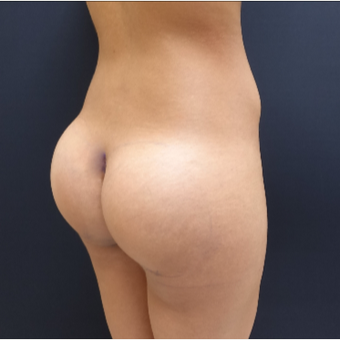 25-34 year old woman treated with 548cc Round Silicone Butt Implants for her Butt Augmentation after 3033291